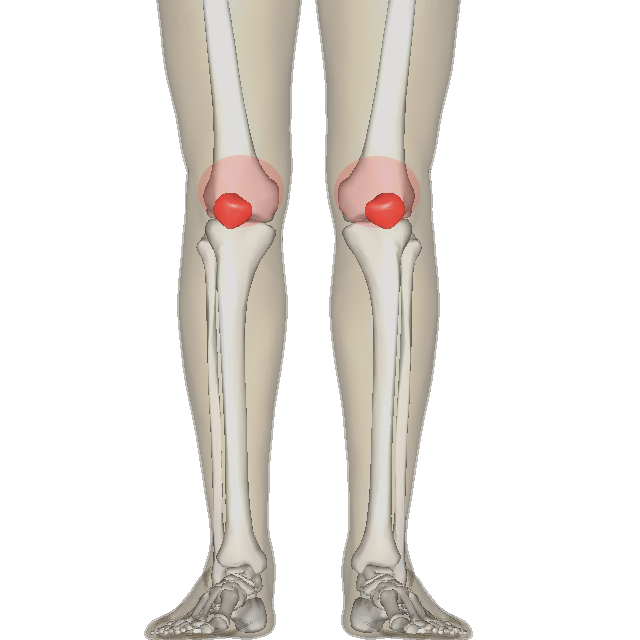 Patellofemoral Pain Syndrome Wikipedia