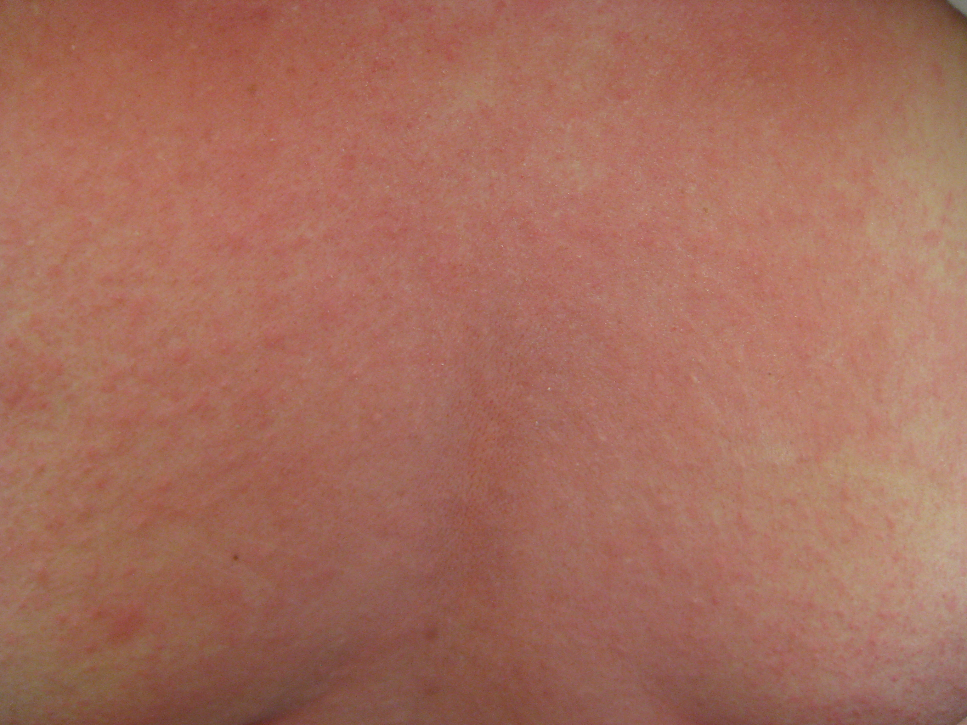Red Rash On Chest