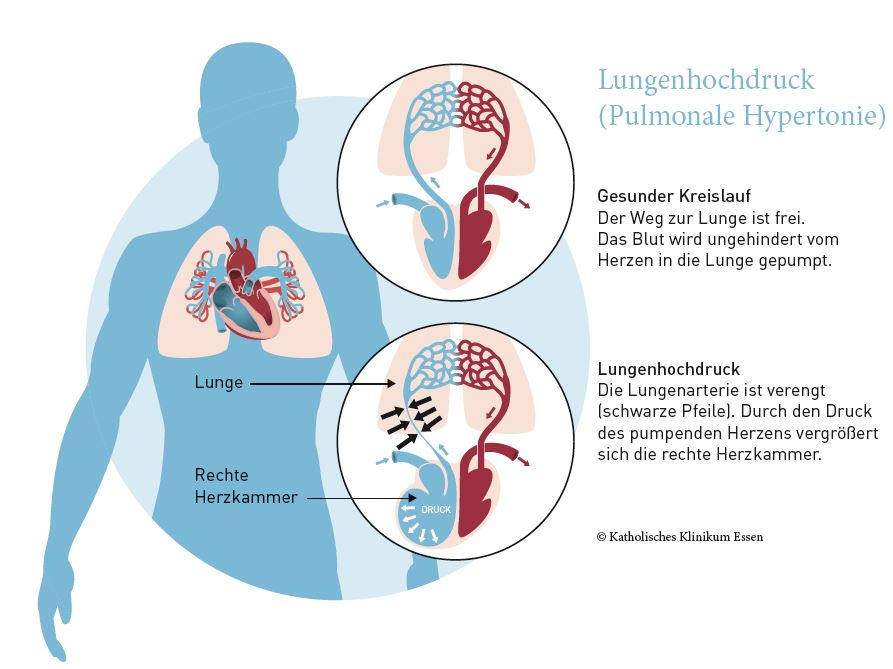 Ungewöhnlich Lungen Anatomie Diagramm Zeitgenössisch - Anatomie ...