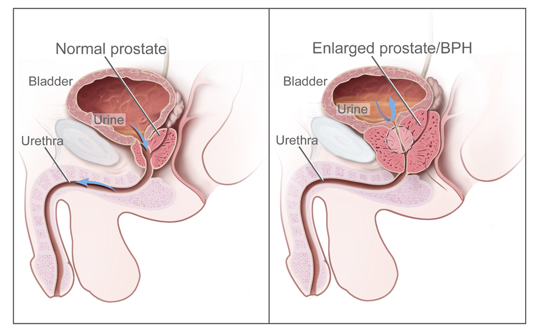 the process of benign prostatic hyperplasia Benign prostatic hyperplasia (bph), also called prostate enlargement, is a  noncancerous  the latest alternative to surgical treatment is arterial  embolization, an endovascular procedure performed in interventional radiology  through.