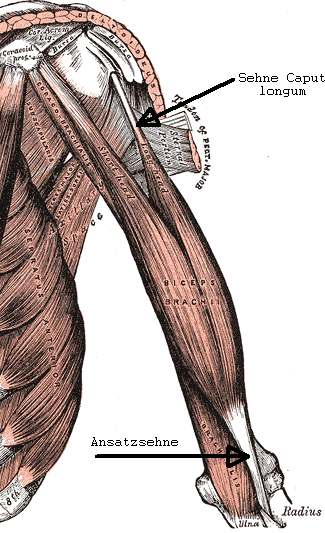 Image shows anatomy of Biceps tendon rupture