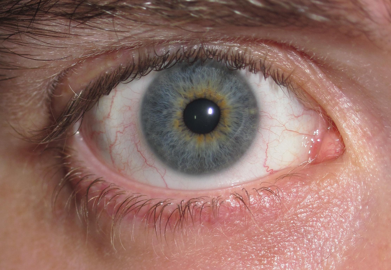почему на фото глаза другого цвета свою