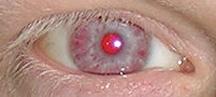 ¿Por qué tenemos los ojos de color?