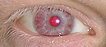Red (albino) eye.png