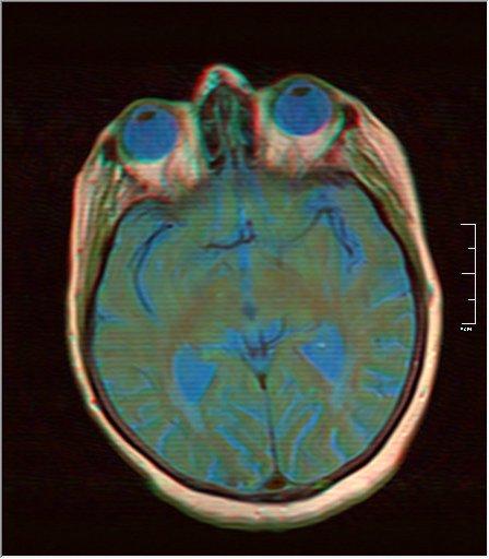 Brain MRI 0052 10.jpg