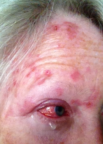 Day07 shingles or Herpes Zoster Virus attacking forehead and eye
