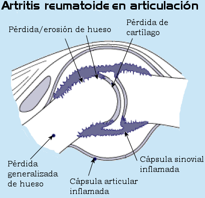 Illustration of a joint with rheumatoid arthritis.png