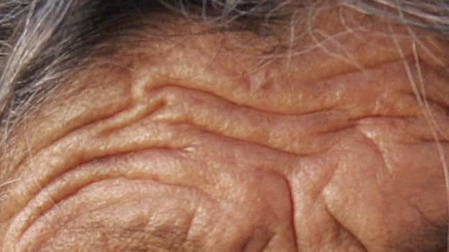 Skin_folds(Old_zacatecas_lady_cropped).j