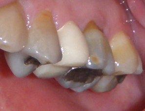 Dental Implants  WebMD  Better information Better health