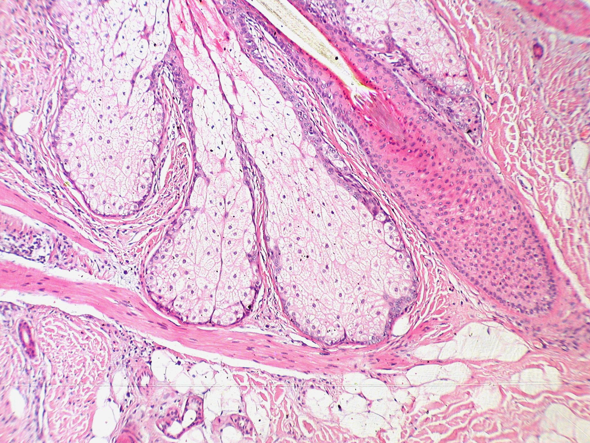 Chicken Skin Disease Home Remedy