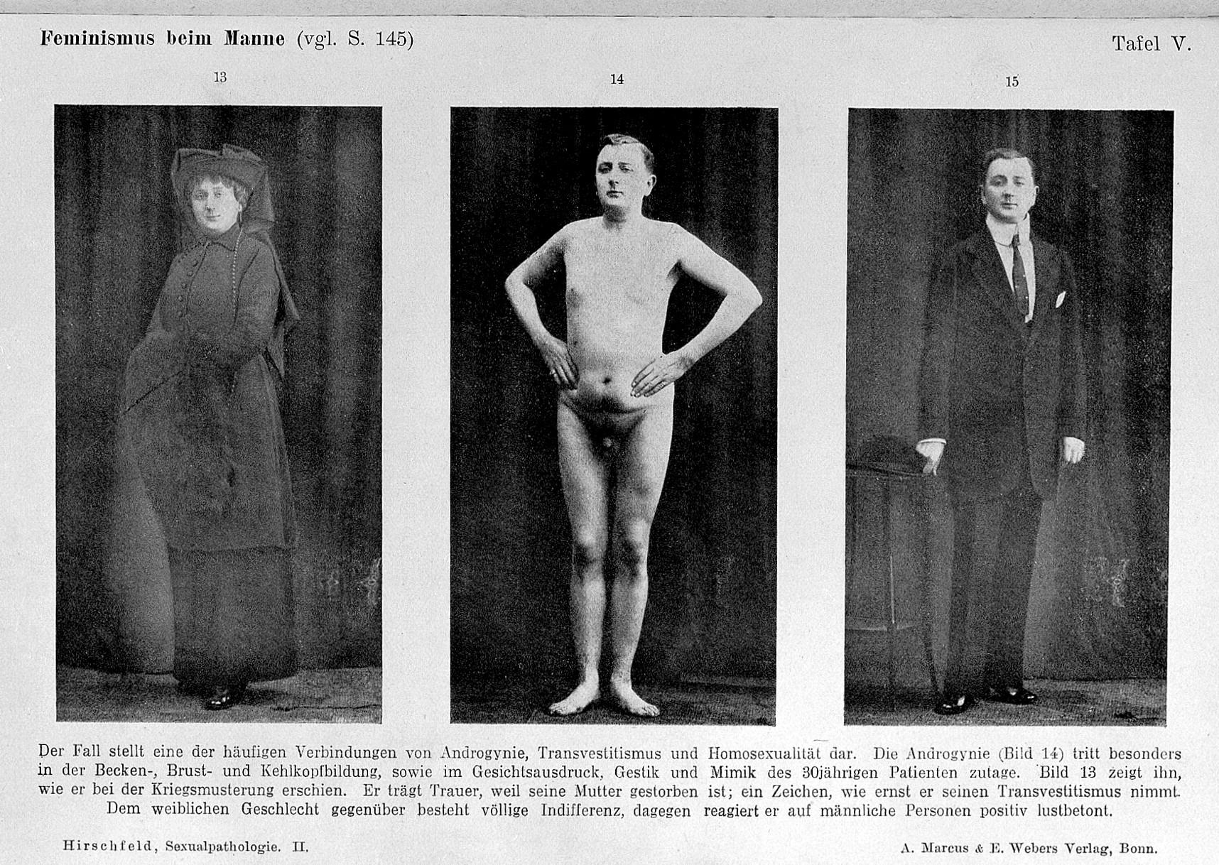 omosessuali nei campi di concentramento Parma
