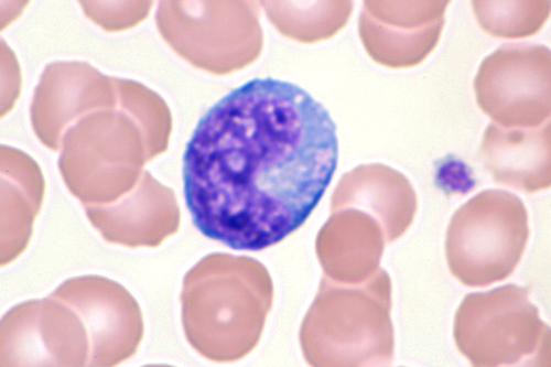 File:Mononucléose infectieuse-6.JPG - Wikimedia Commons