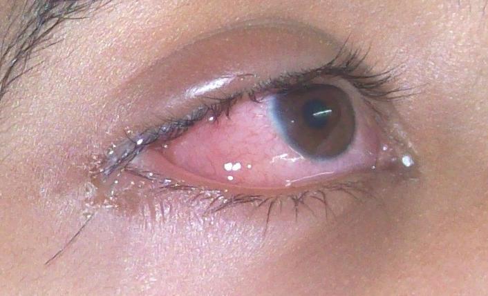 oko alergika