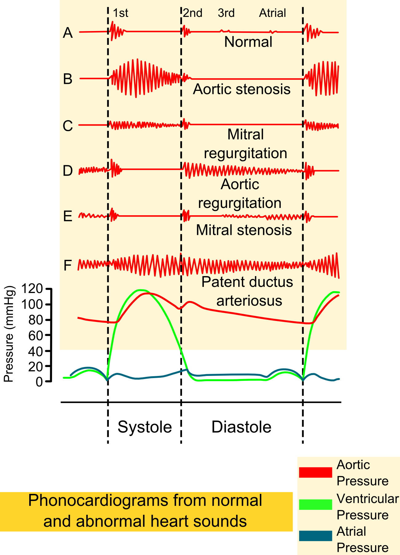Phonocardiograms_from_normal_and_abnormal_heart_sounds_with_pressure_diagrams