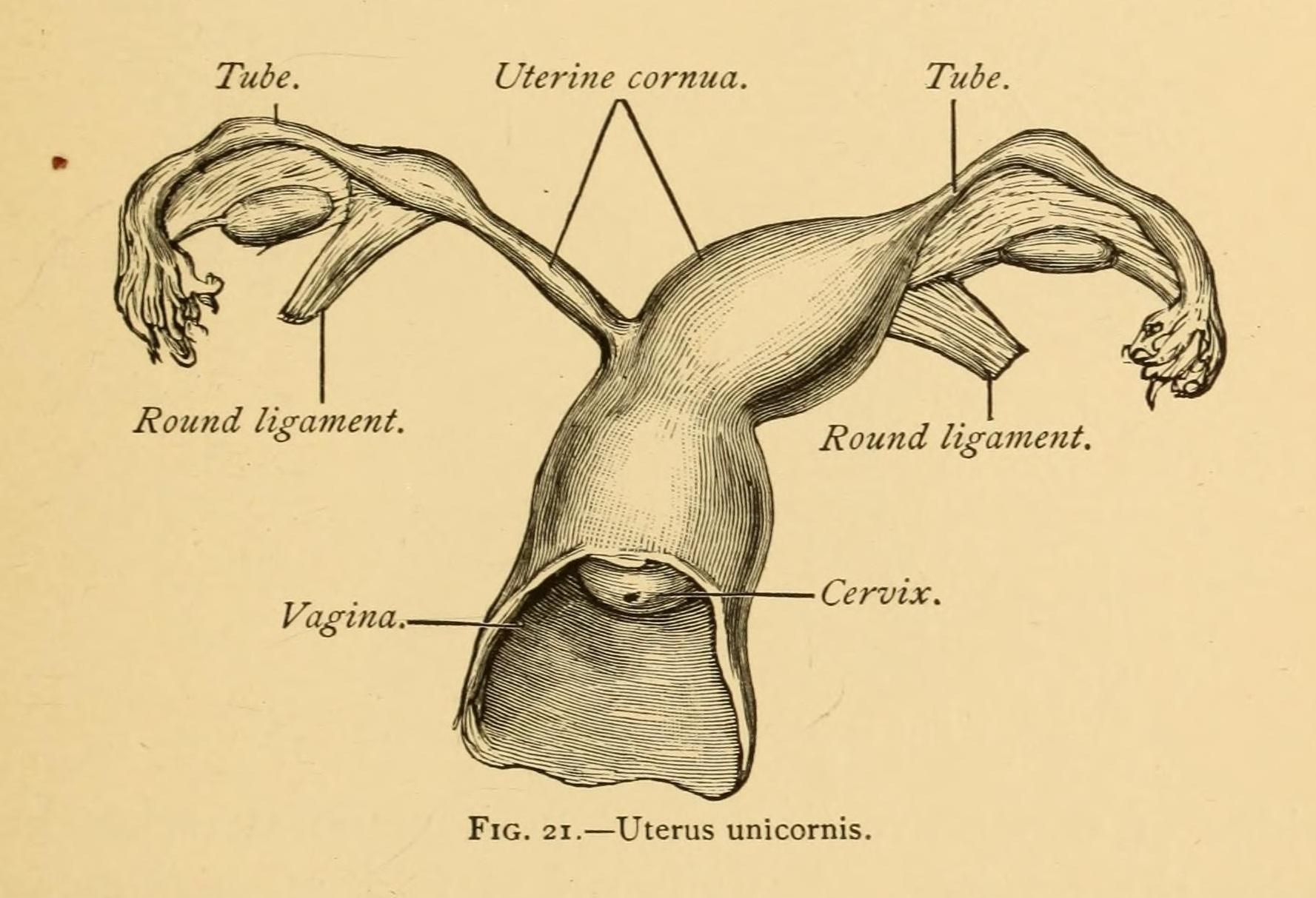 uterus unicornis