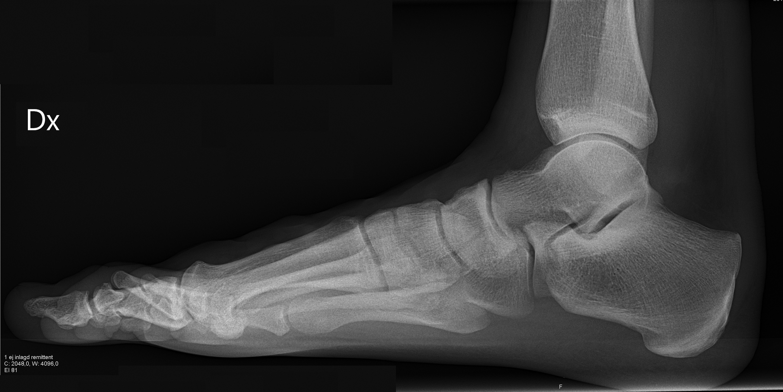 File:X-ray of normal right foot by lateral projection.jpg ...