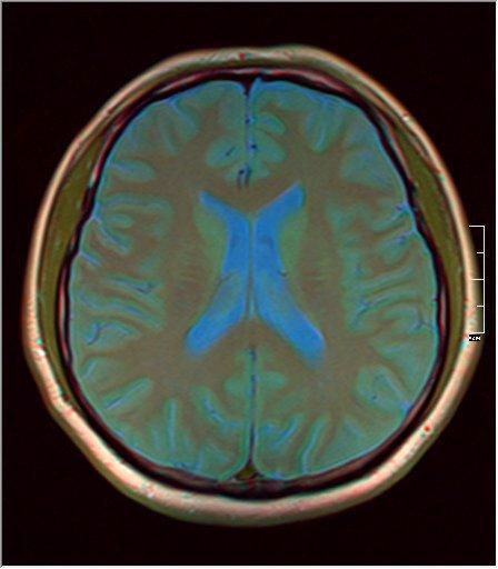 Brain MRI 0077 08.jpg