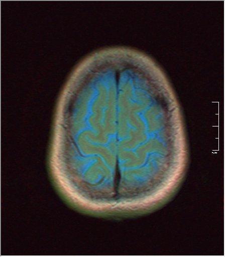 Brain MRI glioma 01.jpg
