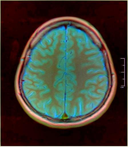 Color Brain MRI 0284 05.jpg