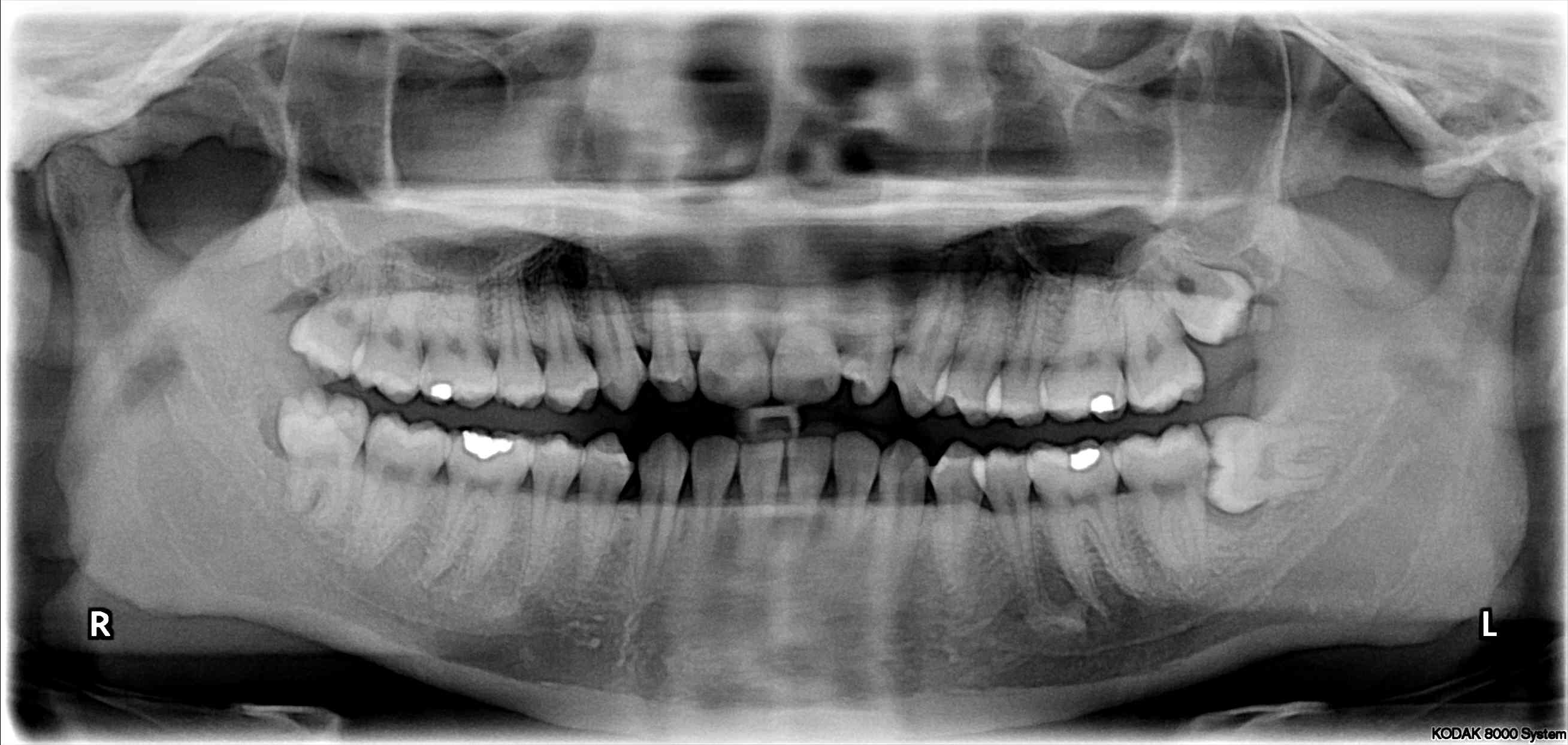 Upper Wisdom Tooth Infection File:Impacted wisdom t...