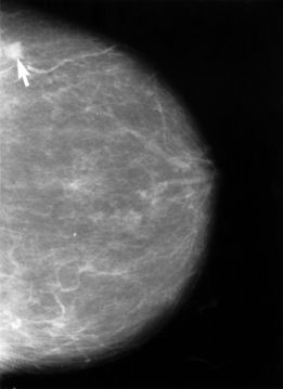 The arrow on this mammogram points to a small ...