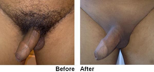 pictures-of-male-shaved-pubic-hair