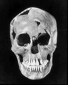 "Skull of ""Minnesota Woman"" unearthed in 1931."