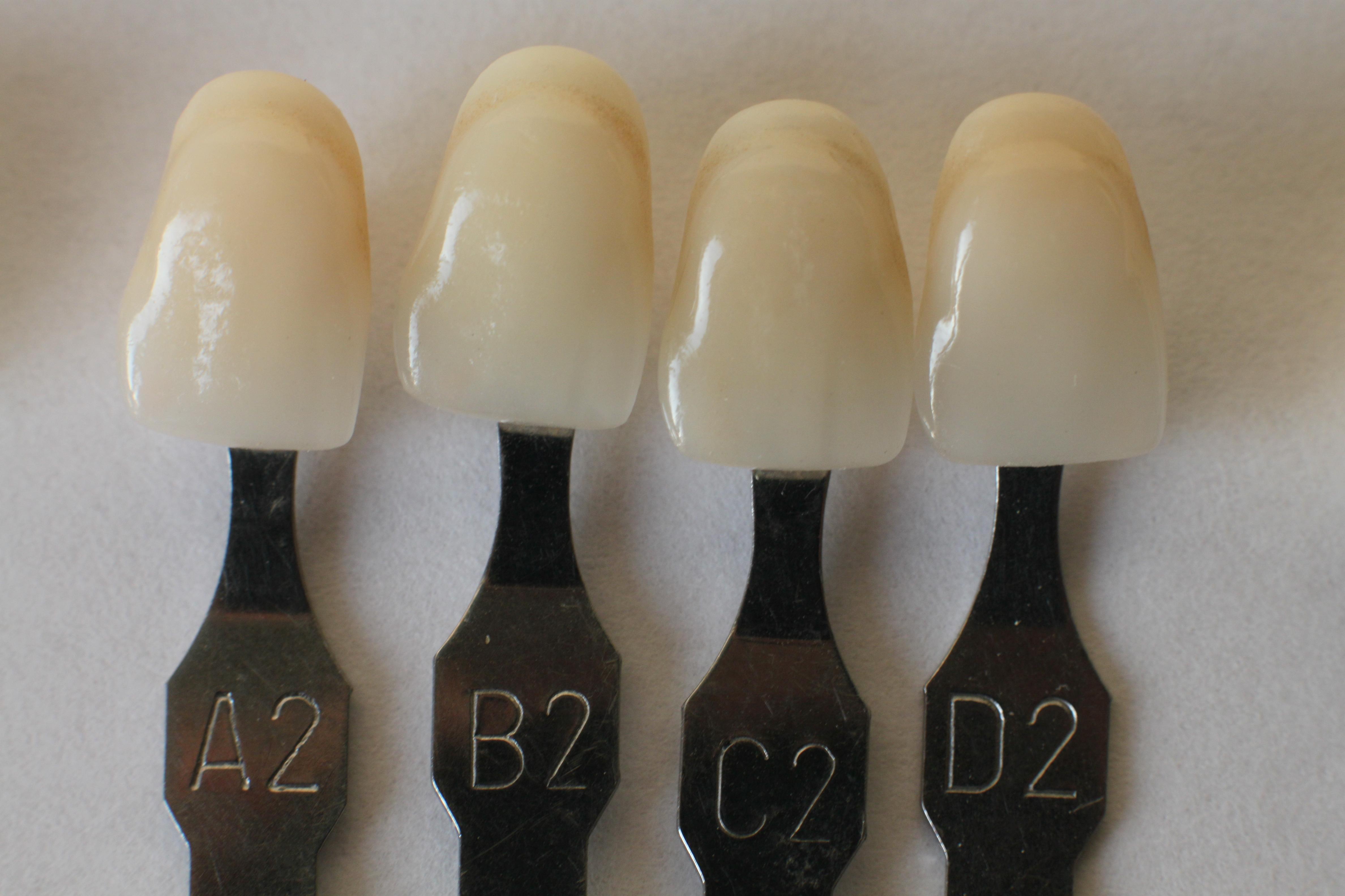 Zahnfarben CEREC: Keramikfüllungen