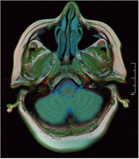 Brain MRI 0129 18.jpg