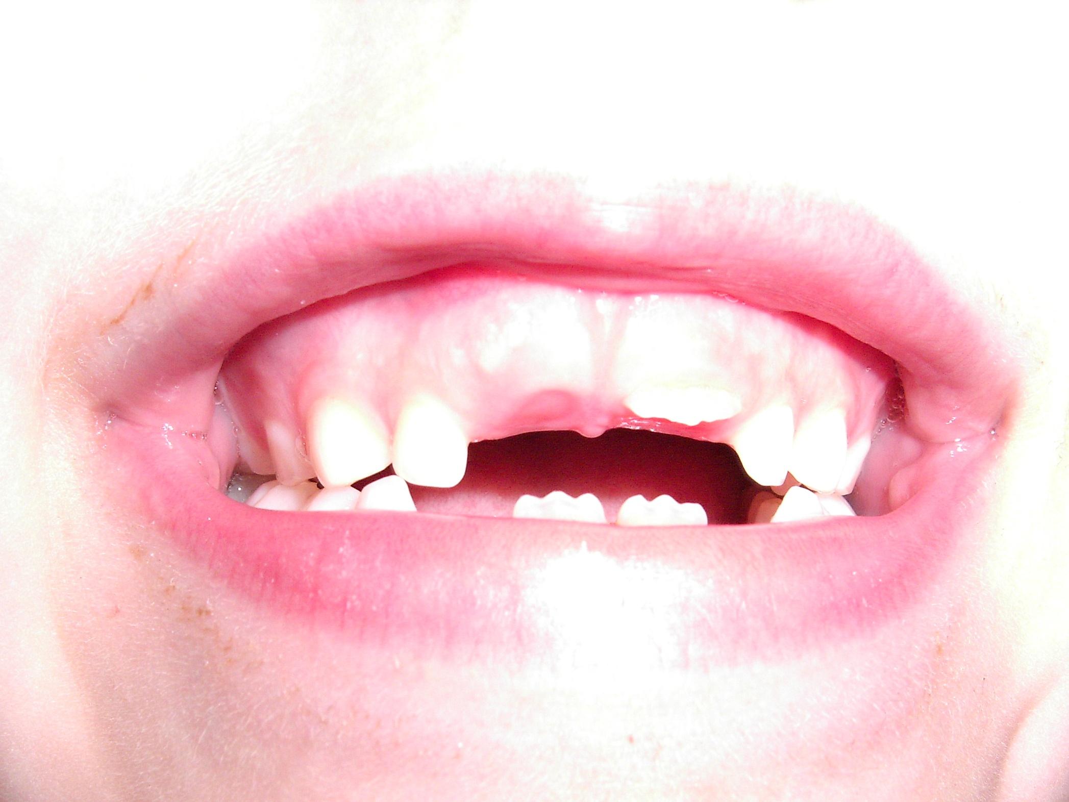 Bleibender Zahn Hinter Milchzahn