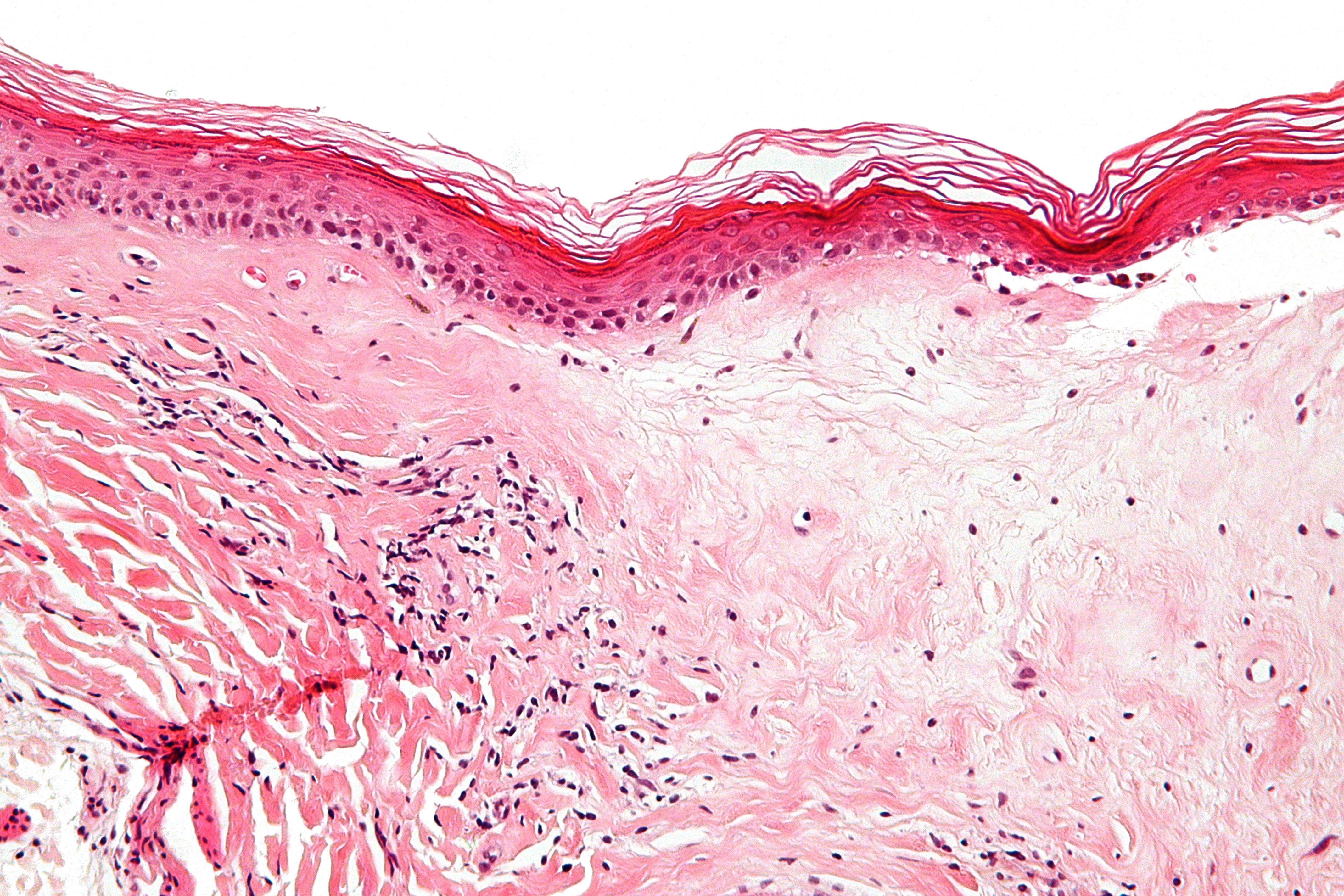 vulvar psoriasis symptoms