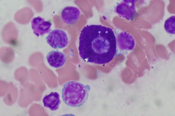Mast Cell Tumors Stage  In Dogs