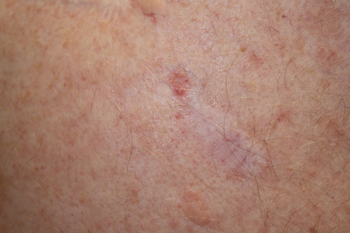 File:Basal cell carcinoma, nodular.jpg