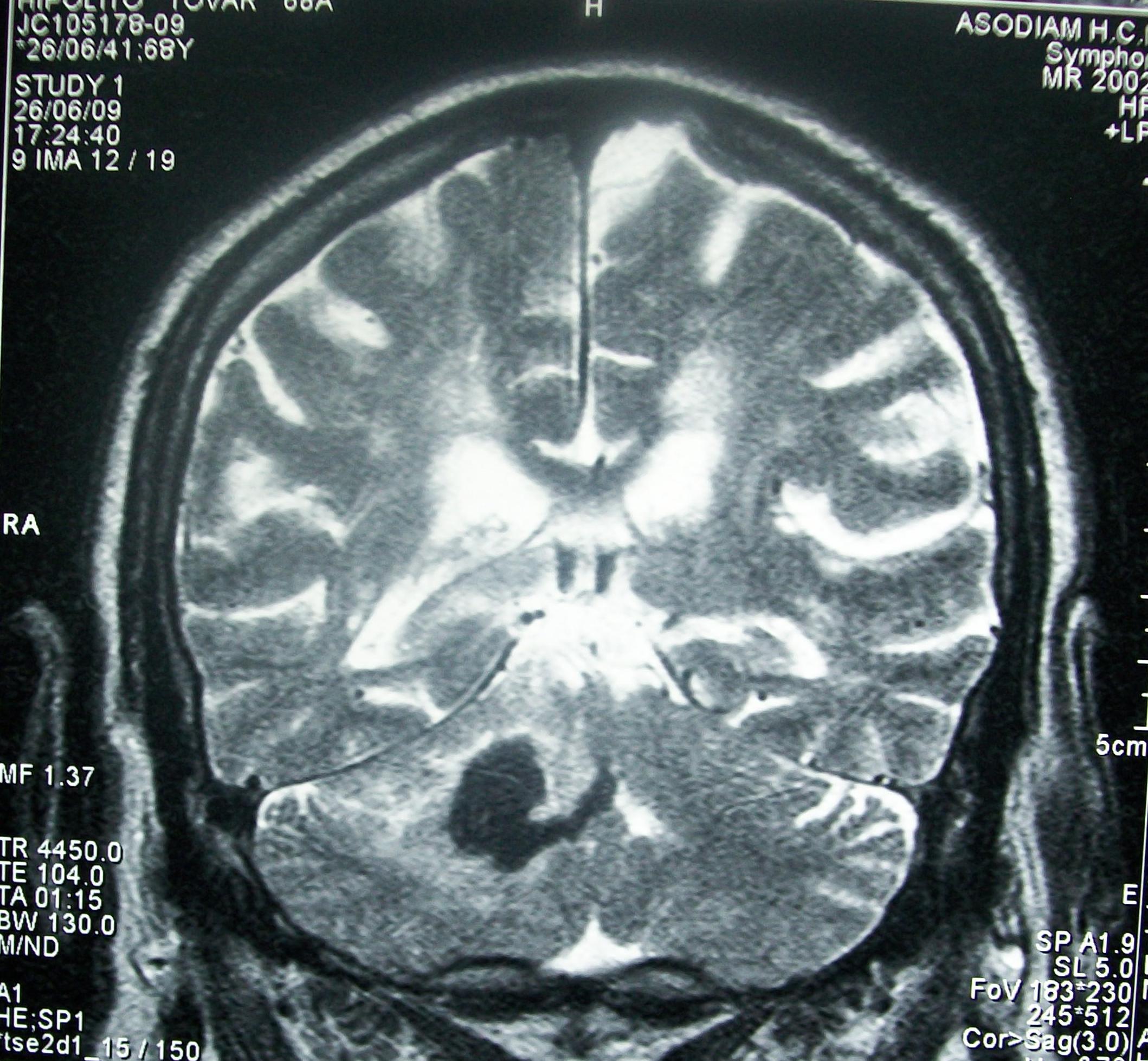Contusión cerebral ppt