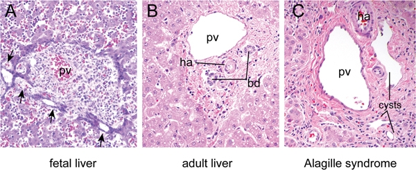 File Histology of normal and defective intrahepatic bile ducts