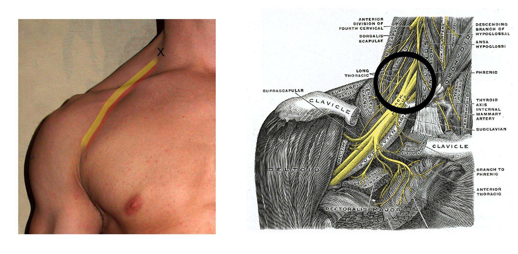 phil osophy jiu jitsu shoulder pinches and the brachial