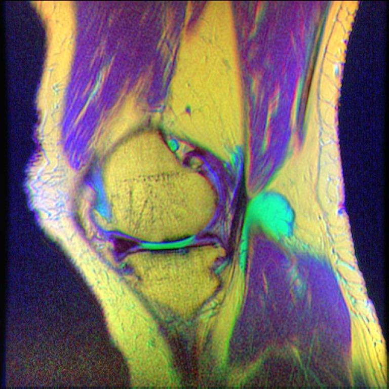 File:Knee MRI, T1T2PD 16.jpg - Wikimedia Commons