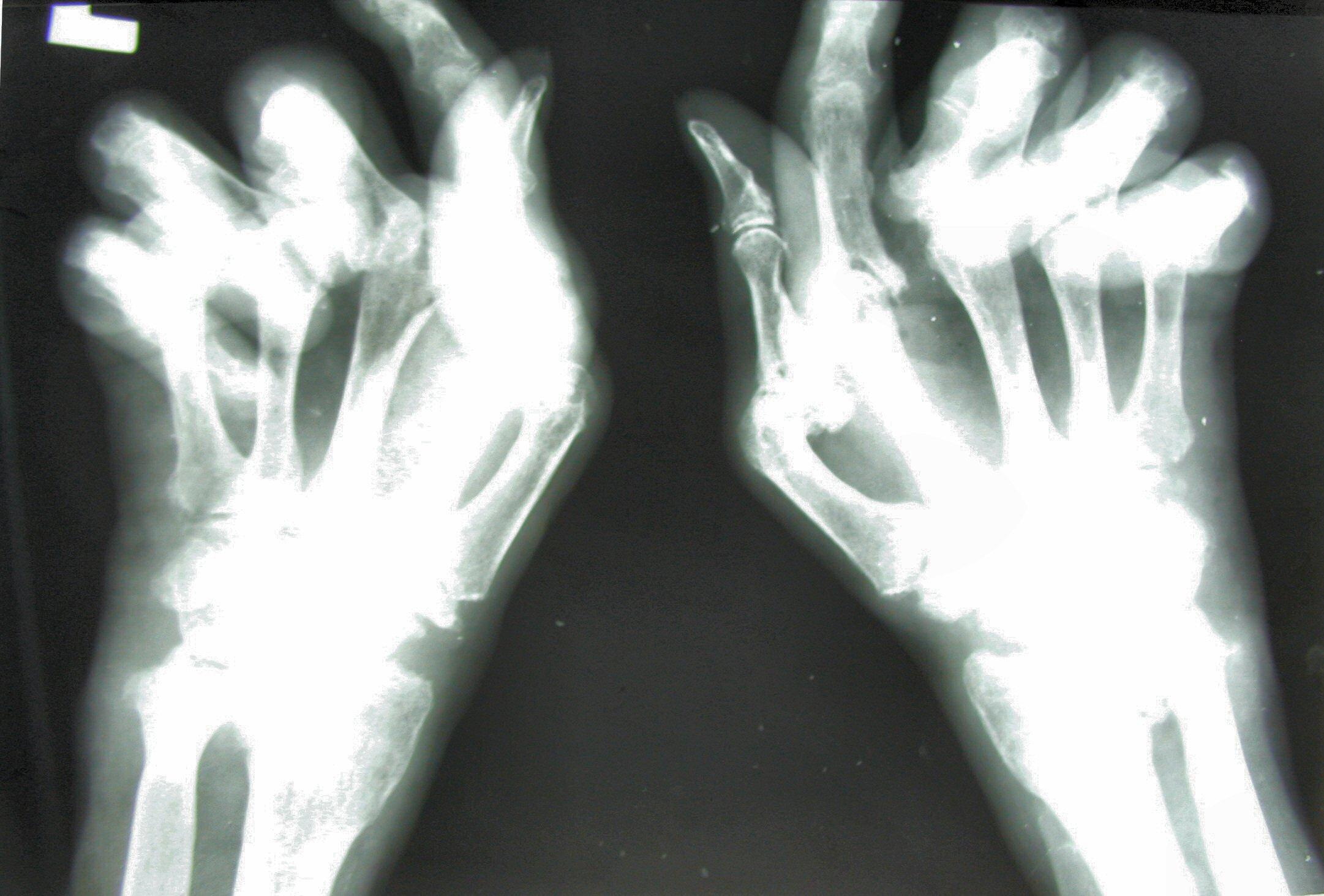 Arthritis mutilans , Wikipedia