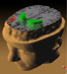 Data from a PET study suggests that the less the frontal lobes are activated (red) during a working memory task, the greater the increase in abnormal dopamine activity in the striatum (green), thought to be related to the neurocognitive deficits in schizophrenia.