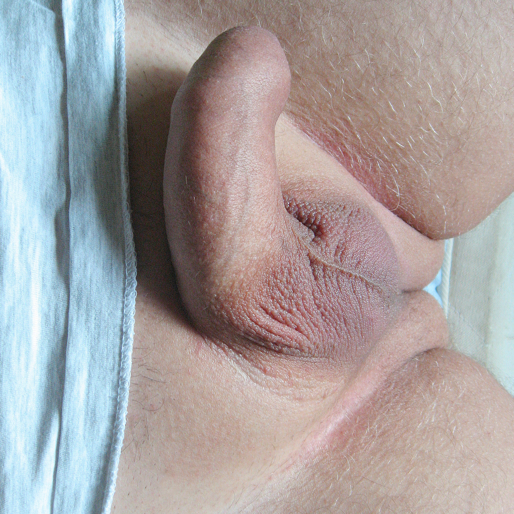 Puberty penis information