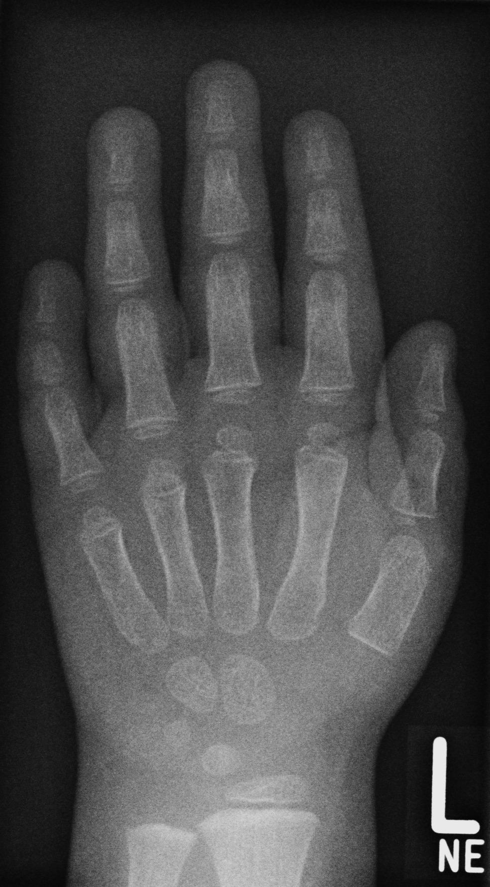 Einen gebrochenen Daumen diagnostizieren wikiHow