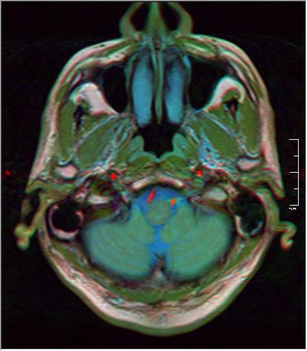 Brain MRI 293 19.png