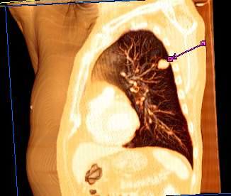 Thorax CT pcor Cut 3D Volume Rendering Haut.jpg