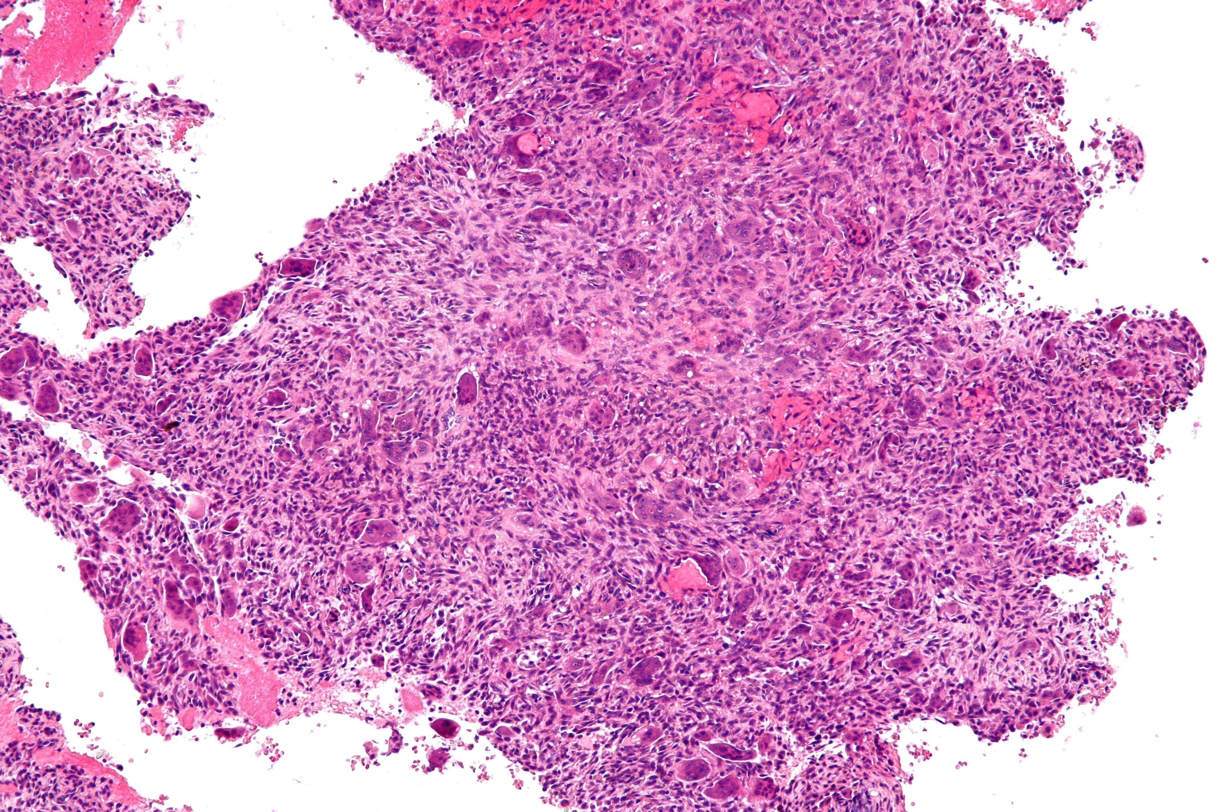 File:Aneurysmal bone cyst - intermed mag.jpg