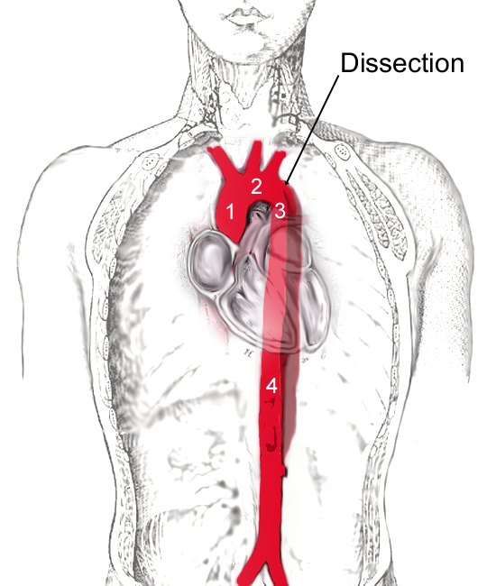 Диссекция аорты - Aortic Dissection