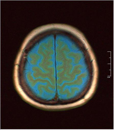 Brain MRI 0133 02.jpg