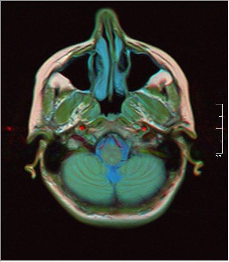 Brain MRI 0146 18.jpg