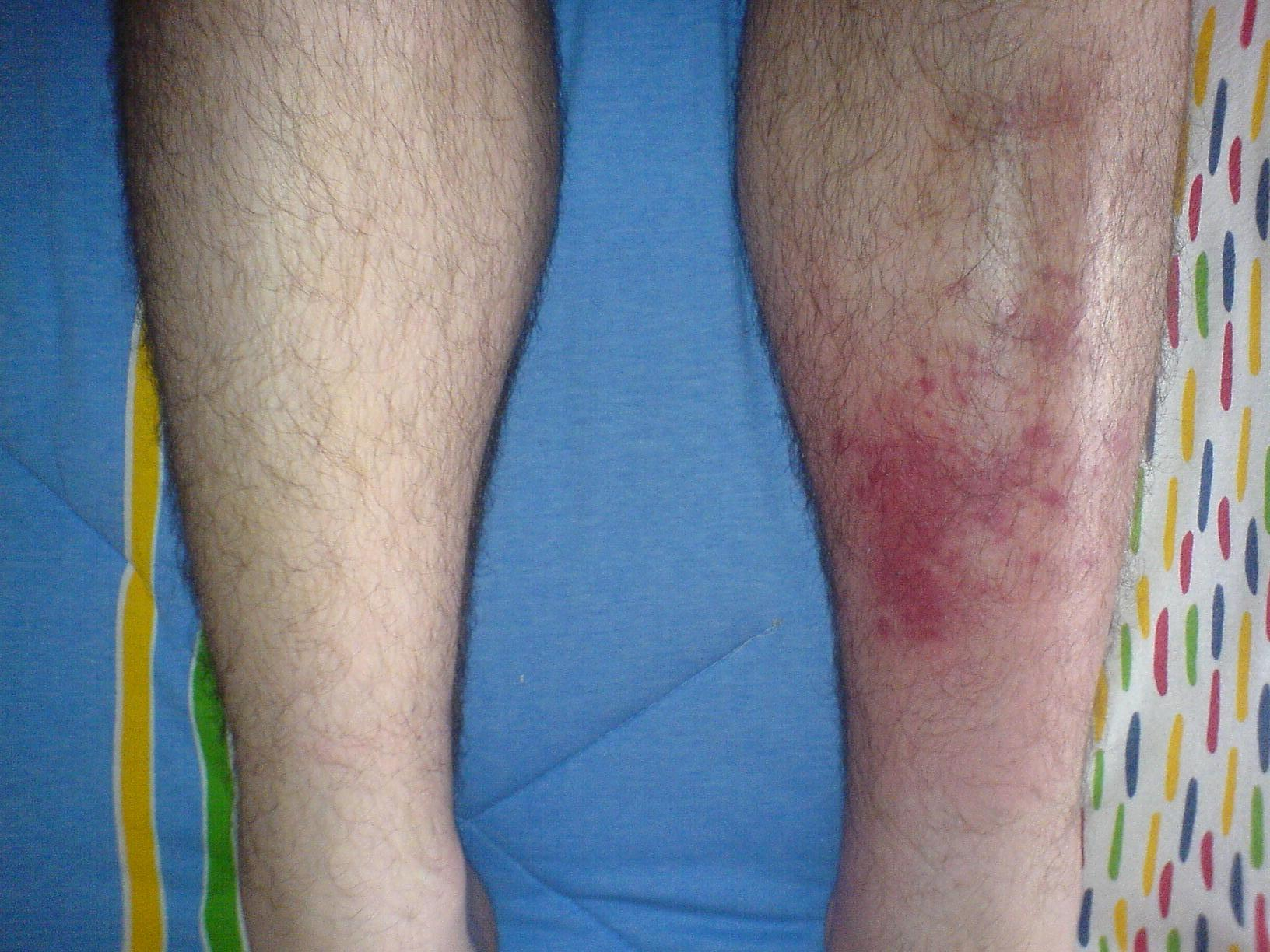 Why are skin diseases so common in wrestling as opposed to other ...