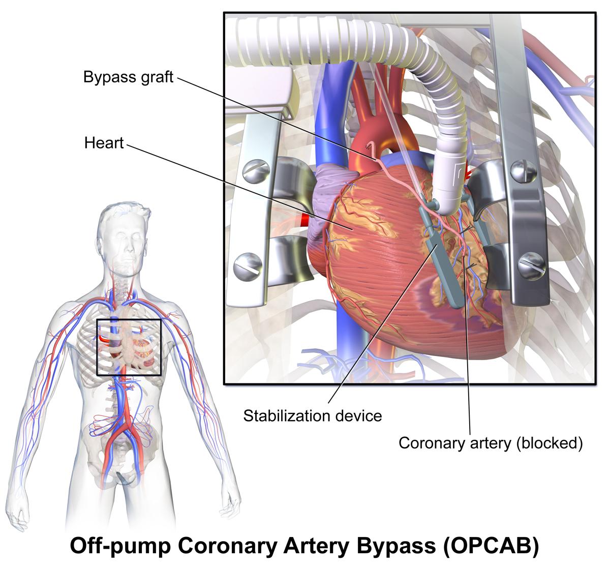 off pump coronary artery bypass wikipedia