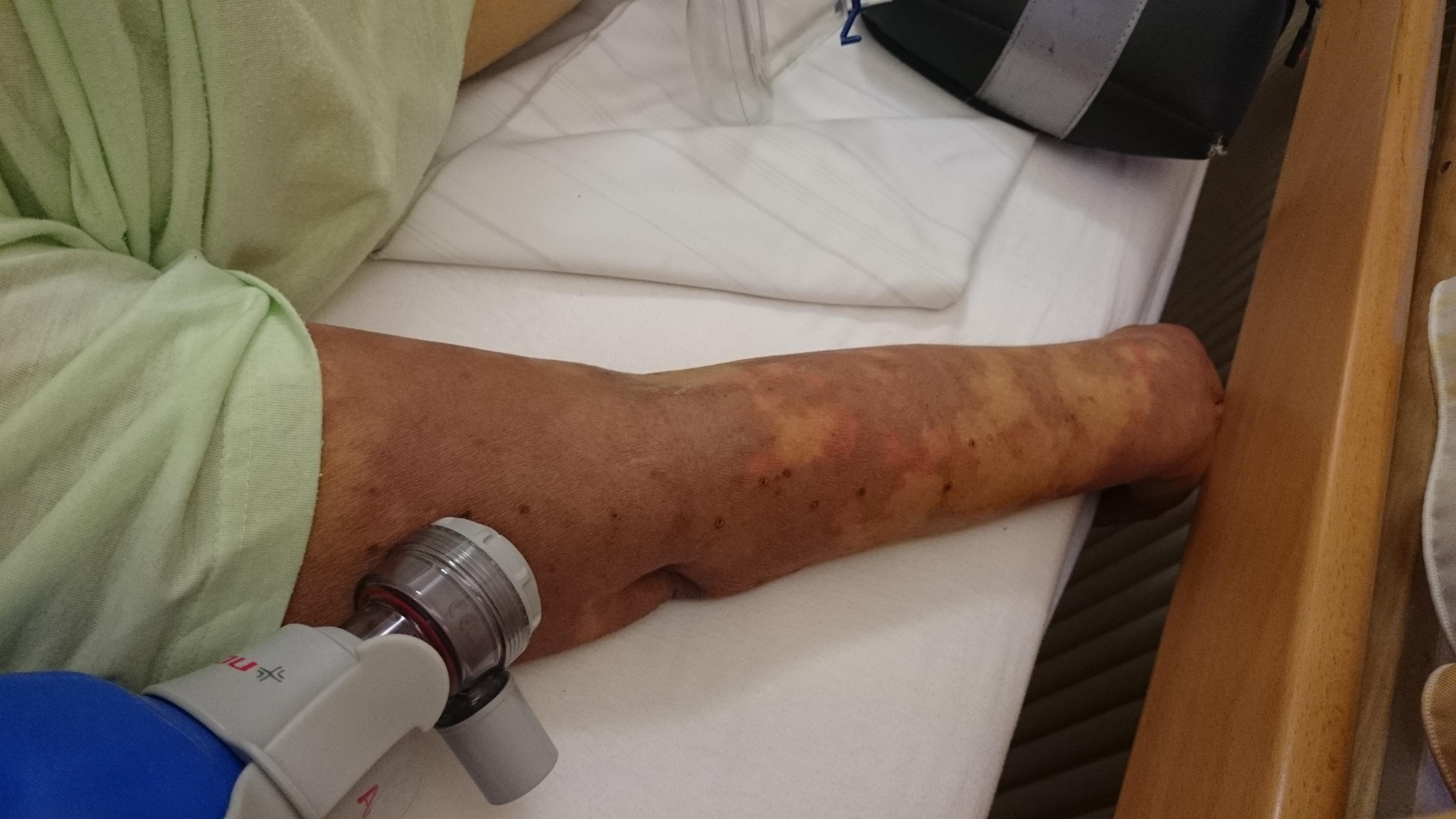 código icd 10 para infección de la piel